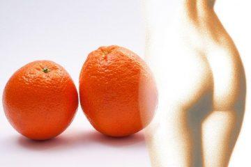 celulit - narandžina kora